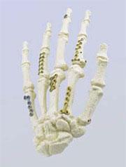 Frakturen Der Finger Und Mittelhandknochen Lubinus Stiftung In Kiel